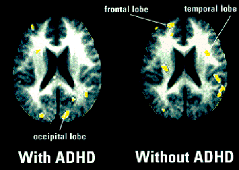 Pet Scan Brain Adhd